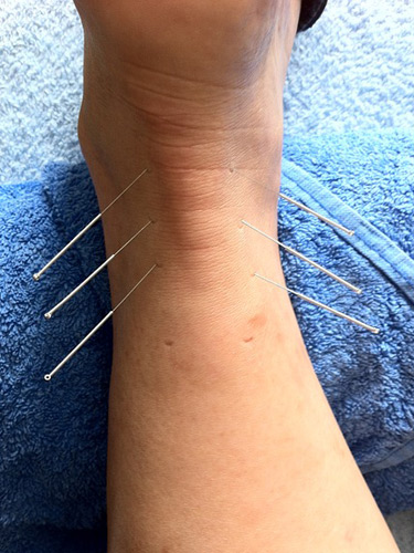 acupuncture for acute and other injuries